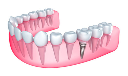 Are There Benefits of Getting Dental Implants Over Getting Dentures?