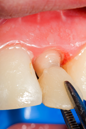 What goes into Prepping Teeth for Veneers