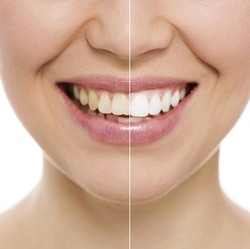 A before and after image of a dental patient who received teeth whitening.